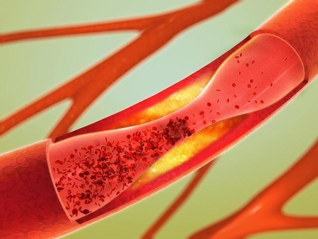 A representational image showing precipitation and narrowing of blood vessels in the brain.