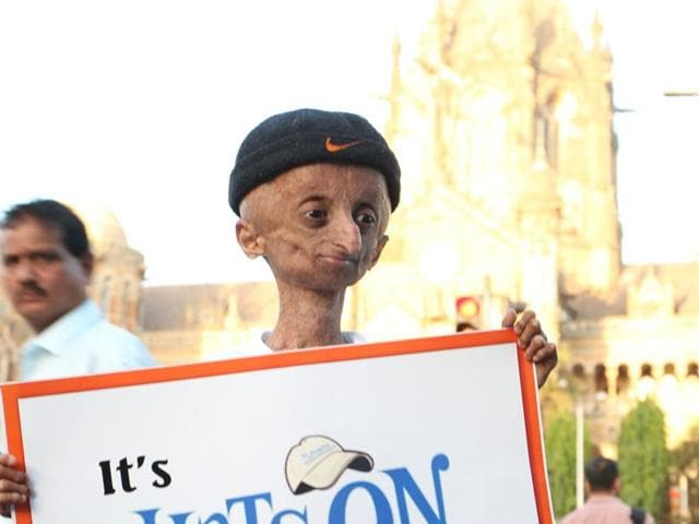 Progeria,Rapid-ageing condition,Hats on for Progeria