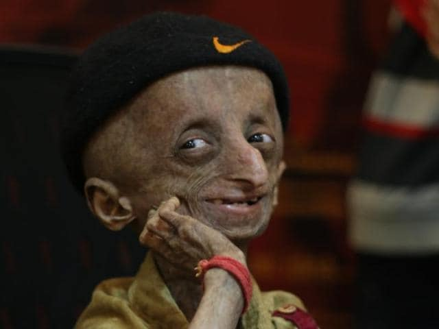 Nihal Shrinivas Bitla was campaigning to raise an awareness about his condition, a rare genetic disorder called progeria.