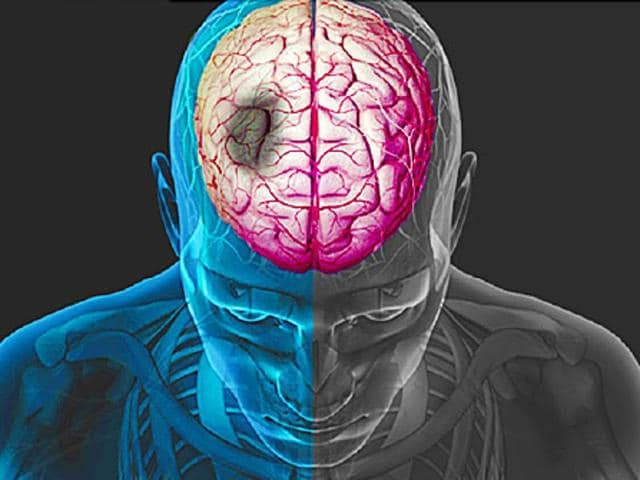 Researchers said that the findings can change the way the most common form of stroke is treated globally, including in India where an estimated 1.2 million people suffer from ischaemic strokes.