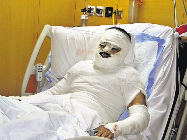 The victim sustains 40% burns on his face, chest, abdomen and arms.