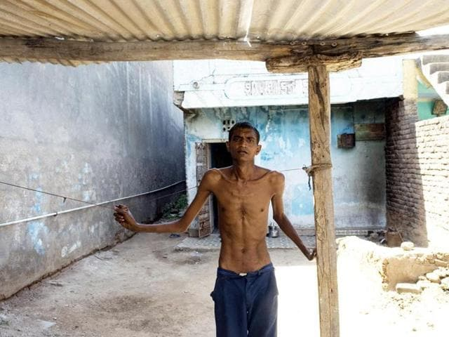 With silicosis eating away at his lungs, Mukesh Chaganbhai's frame is wracked by coughing fits, breathlessness and fever. (Khambhat, 2009)