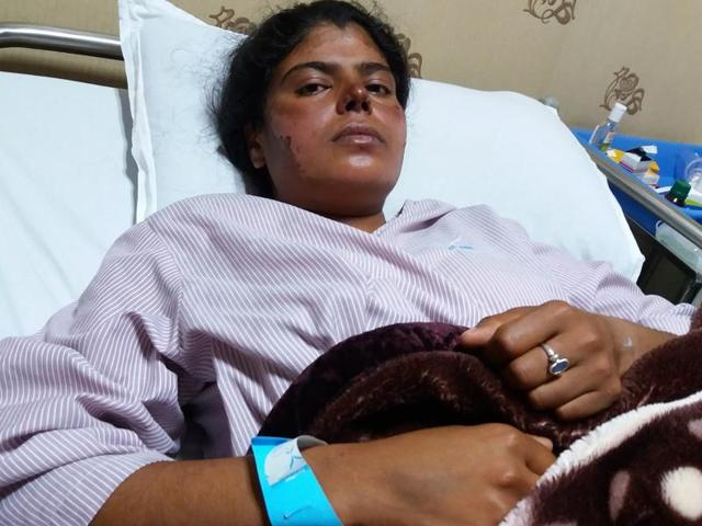 Seema Goswami from Haryana, who reached Everest summit on May 20, recovering at Norvik Hospital in Kathmandu.