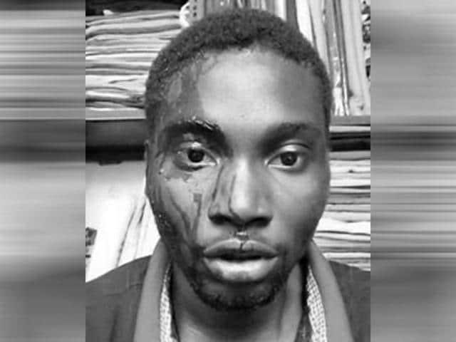 Nigerian national Ghazeem, third-year degree student in a city college, was attacked in Banjara hills in Hyderabad. (Facebook/Nigerians Association-Ts)