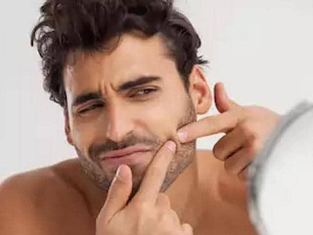Pimples,Men skincare,Pimples and acne