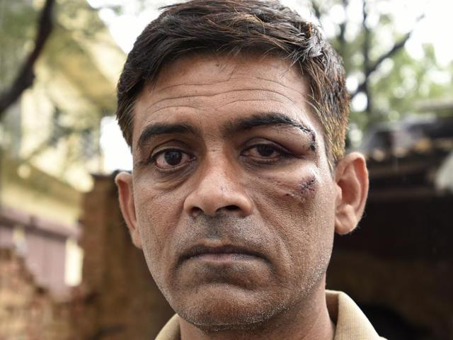 A Delhi taxi driver, Nuruddin, was allegedly beaten up by a group of African nationals after he refused to take on board more than four passengers.(Sonu Mehta/HT Photo)