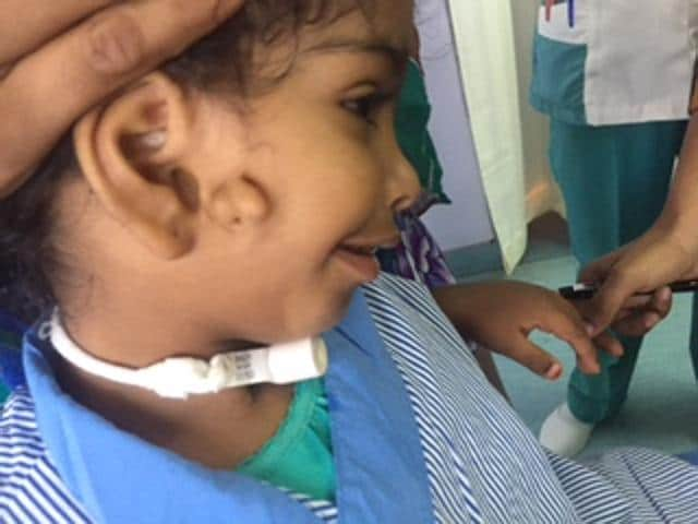 Albaraa Rashid from Oman was brought to India with a rare deformity – she was born with the right side of her jaw missing. Doctors say one in 10 lakh people are born with the defect. She also had an extra ear, making her condition even more complex.