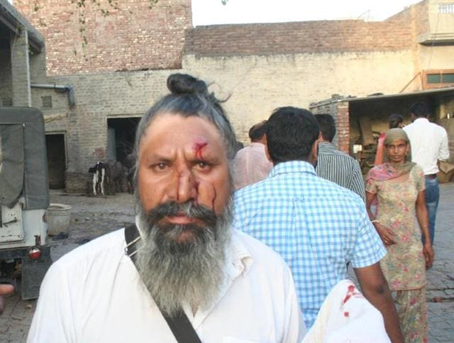 Surinder Singh, who suffered injuries in the clash between two groups at Balmiki Chowk in Faridkot.