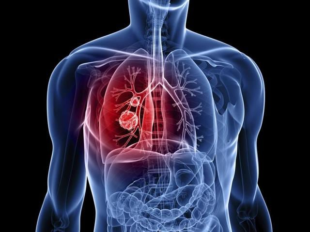 Having radiotherapy once a day for six and a half weeks or twice a day for three weeks, when combined with chemotherapy, is equally good at treating small cell lung cancer that hasn't spread.