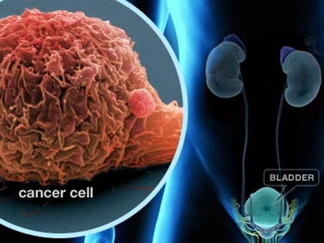 New immune therapy,immune therapy drug,bladder cancer