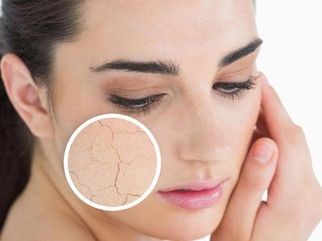 Increase water intake and exfoliate the dead skin cells to achieve smooth skin, says experts.