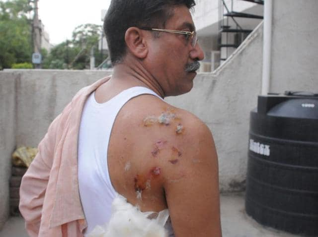 59-yr-old GS Johar was attacked by a troop of monkeys on the terrace of his house in DLF Phase 1.