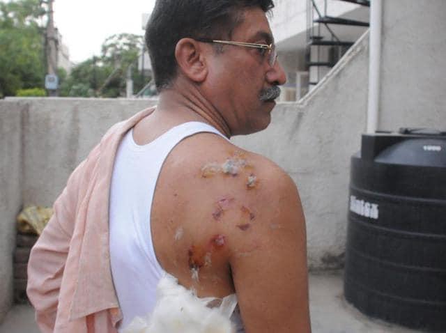 monkey bites man,Gurgaon monkey menace,DLF Phase 1