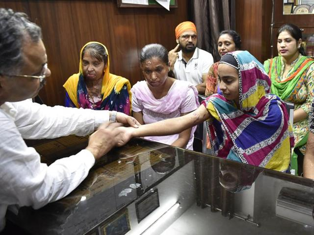 A doctor at a private hospital examining the victims of acid attacks and burns in Amritsar on Saturday.