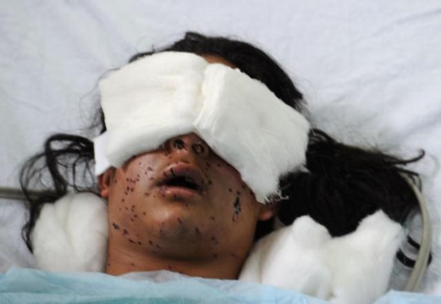 Indian Kashmiri girl Insha Malik, 14, lays unconscious in a hospital bed after being shot with pellets fired by Indian security forces, with doctors saying she had lost vision in both eyes, in the surgical ICU hospital in Srinagar on July 14.