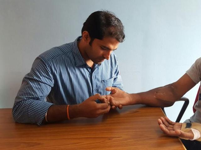 Jith Kumar Saji (R) gets help from a physiotherapist after a surgery gave him new pair of hands.