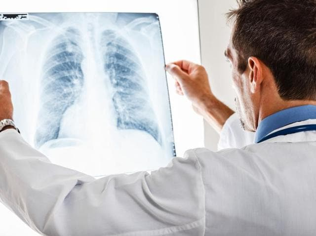 Advances in lung cancer therapy require a greater understanding of the molecular origins of the disease, say researchers.