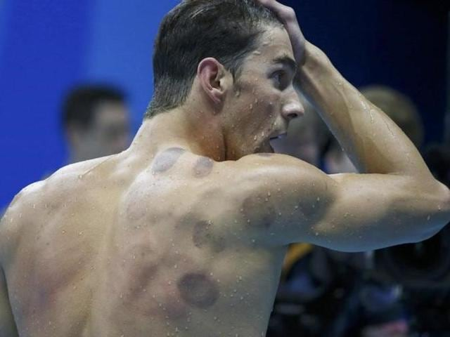 Michael Phelps is seen with red cupping marks on his shoulder as he competes.
