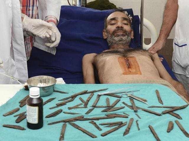 A man lies under a table displaying the 40 knives removed from his stomach, in a hospital in Amritsar on Tuesday,. A team of two surgeons, two critical care physicians and an anaesthetist conducted the surgery during which they initially removed 28 knives and the rest after further investigation revealed 12 more, the hospital said.