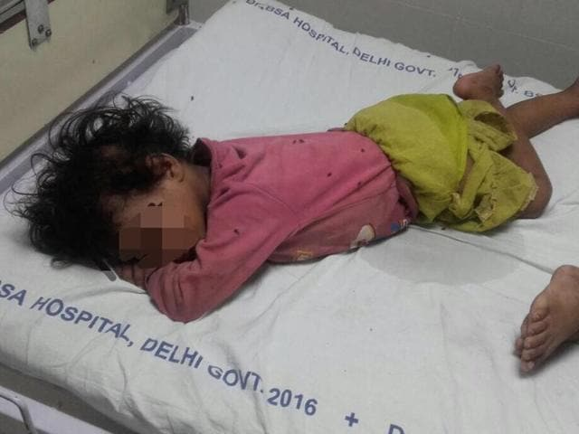 Image result for 4 month old with maggots abandoned