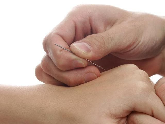 Acupuncture is an integral part of the traditional Chinese massage called Tui na.