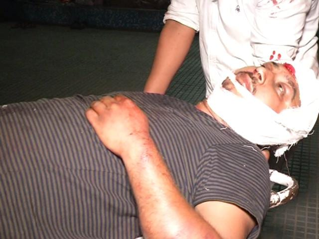 An injured at Government Multispecialty Hospital, Sector 16, in Chandigarh on Monday.