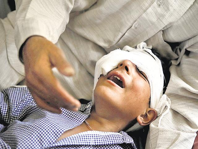 A father comforts his son whom he said was injured by pellets shot by security forces in Srinagar.