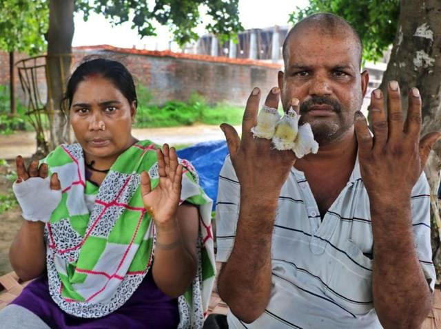 Raju Yadav and his wife Sunita Devi showing their injuries.