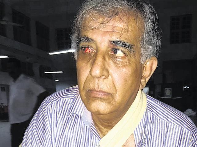 Kersi Randeria, the BPP trustee who said he sustained eye and shoulder injuries in the fight.(HT Ohoto)