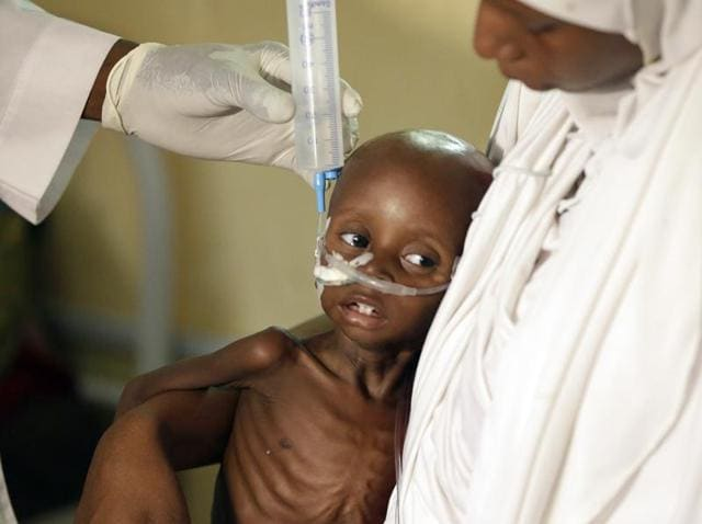 In this photo taken Monday Aug. 29, 2016, a doctor feeds a malnourished child at a feeding centre run by Doctors Without Borders in Maiduguri, Nigeria.