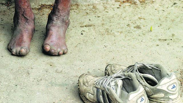 Leprosy is a disease caused by a bacterium called Mycobacterium leprae that affects the nerves, upper respiratory tract and eyes. If left untreated, the disease could lead to deformities.