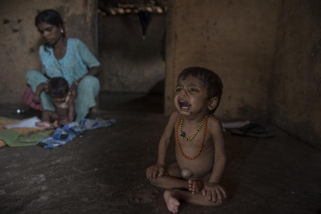 Three-year-old Manoj Pawar who is suffering from malnutrition at Palghar in Maharashtra.