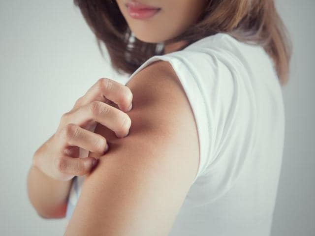 Atopic eczema causes distressing itchy lesions that can lead to broken skin with increased susceptibility to infection.