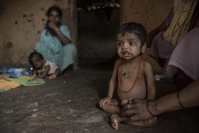 Three-year-old Manoj Pawar is suffering from malnutrition at Bambi Pada, Jawahar, Palghar district