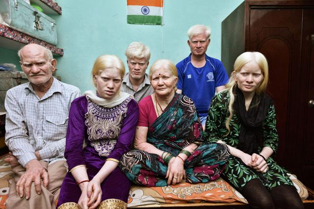 Albinism,Albino,Family with albinism