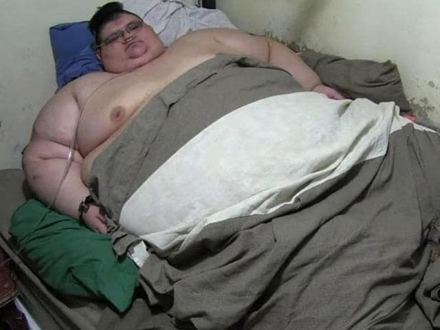 World's heaviest man put on a crash diet