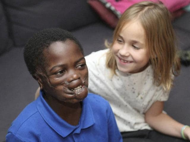 9 Year Old Boy Disfigured By Chimps In Africa Thrives