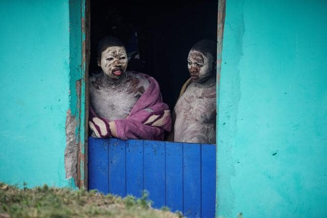 South African Circumcision Rite: A Dangerous Route to