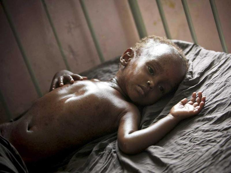 A malnourished and dehydrated child lies on a bed in Banadir hospital in Mogadishu. The United Nations says about 3.6 million people are at risk of starvation in Somalia as well as about 12 million people across the Horn of Africa region, including in Ethiopia and Kenya.
