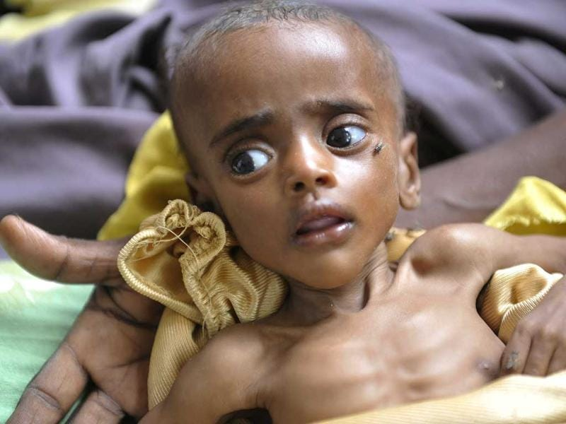 A Somali malnourished boy lies on his mothers hands at the Banadir hospital in Mogadishu