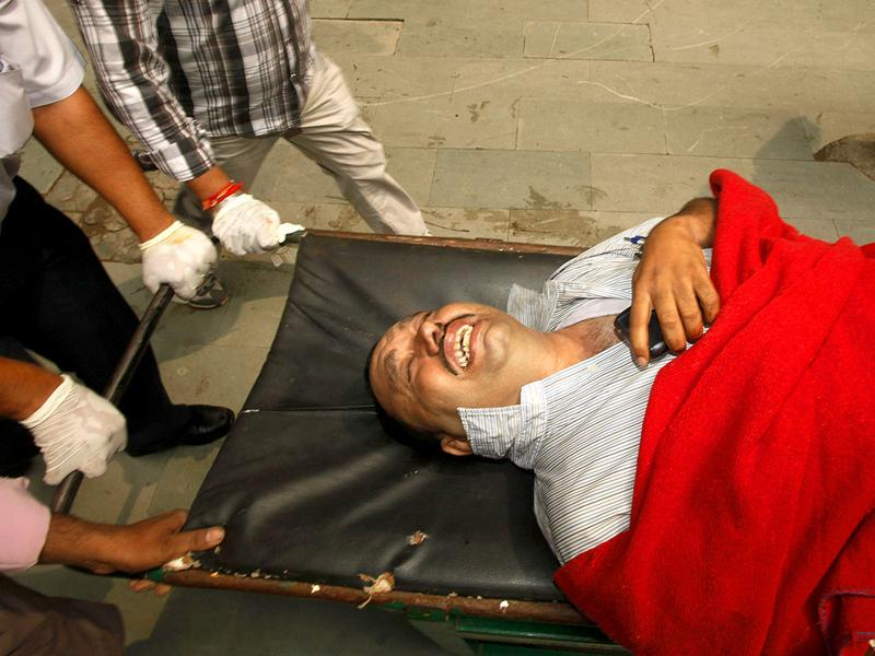 A person injured in the Delhi high court bomb explosion reacts in pain.