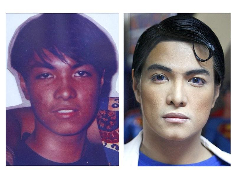 A combination photo shows Herbert Chavez before and after his cosmetic transformation to look more like the comic book character Superman in Calamba Laguna, south of Manila.