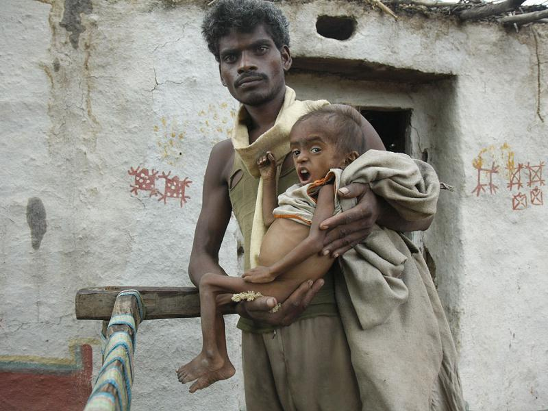 Bagmati, who cannot crawl or walk, is carried by her father Janki Lal, a daily wage labourer, in their village in Baran.