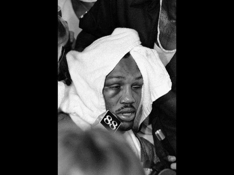 In this file photo, a swollen right eye is apparent on Joe Frazier's face as he is almost covered over by a towel in Manila, Philippines after losing by TKO in the 14th round to heavyweight champion Muhammad Ali at the Coliseum. (AP Photo)