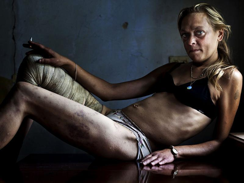 Brent Stirton of South Africa, a Getty Images photographer working for Kiev Independent, has won the first prize Contemporary Issues Singles with this picture of Maria, a drug addict and sex worker, in between clients in a room she rents in Kryvyi Rig, Ukraine. REUTERS/Brent Stirton