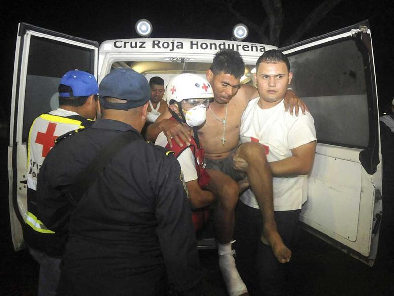 An injured inmate is carried as he arrives at the hospital after a fire broke out at the prison in Comayagua, Honduras, a town 90 miles (140 kilometers). AP
