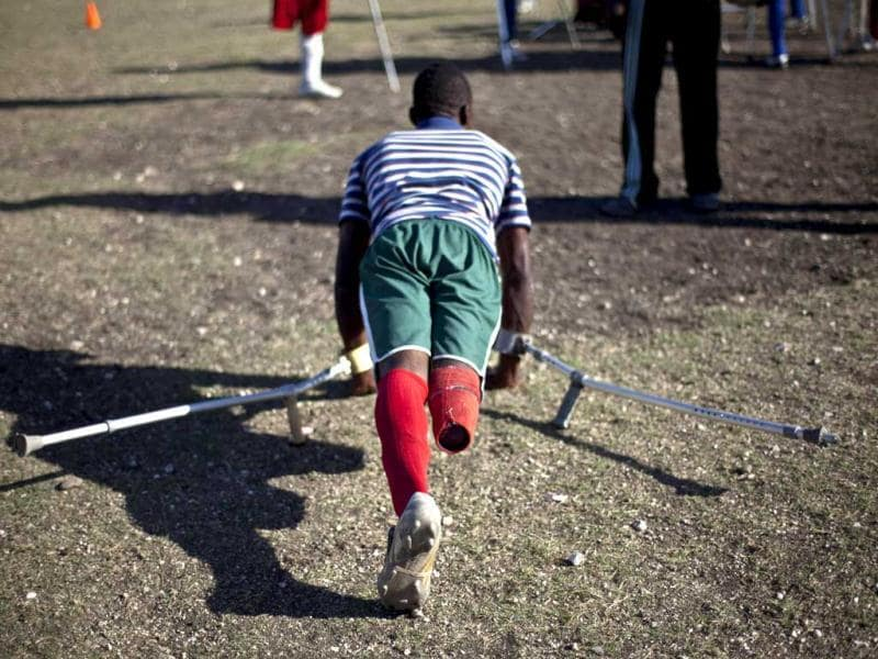 A resident of La Piste camp, Jean Lacroix, 27, whose right leg was amputated due to an injury suffered in a motorcycle accident, trains with his football team in Port-au-Prince, Haiti. AP Photo/Ramon Espinosa