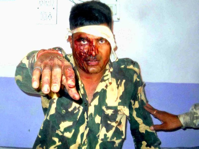 A policeman injured in the landmine blast in Gadchiroli that led to the death of atleast 12 CRPF troopers. HT Photo