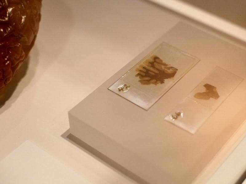 Two slices of Albert Einstein's brain are seen at an exhibition call 'Brains -The Mind as Matter at the Wellcome Collection in London. The brain matter was prepared by Dr Thomas Harvey who was working at the hospital where Einstein died in 1955. (AP Photo/Alastair Grant)