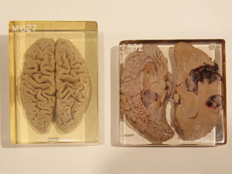 A selection of brain specimens preserved in acrylic illustrating different pathologies on loan from the Mutter Museum -The College of Physicians of Philadelphia are seen on display at an exhibition call Brains -The Mind as Matter at the Wellcome Collection in London. (AP Photo/Alastair Grant)